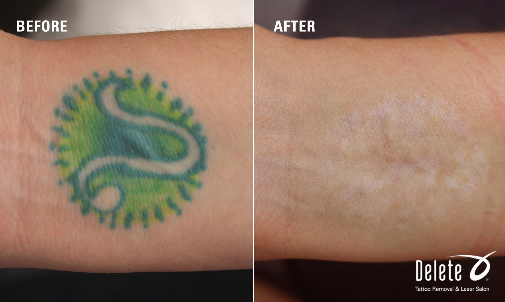 Yes You Can Remove Tattoos With Green Ink Yellow Is Tricky But Check Out This Patient S Happy Before After Laser Tattoo Removal Tattoos Tattoo Removal