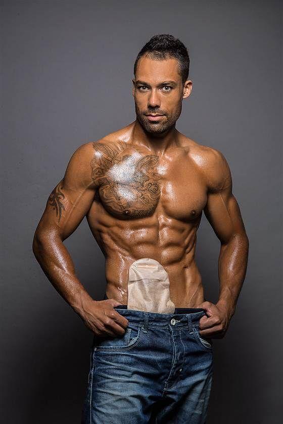 Male Model With Bowel Disease Poses Shirtless Ileostomy Bag