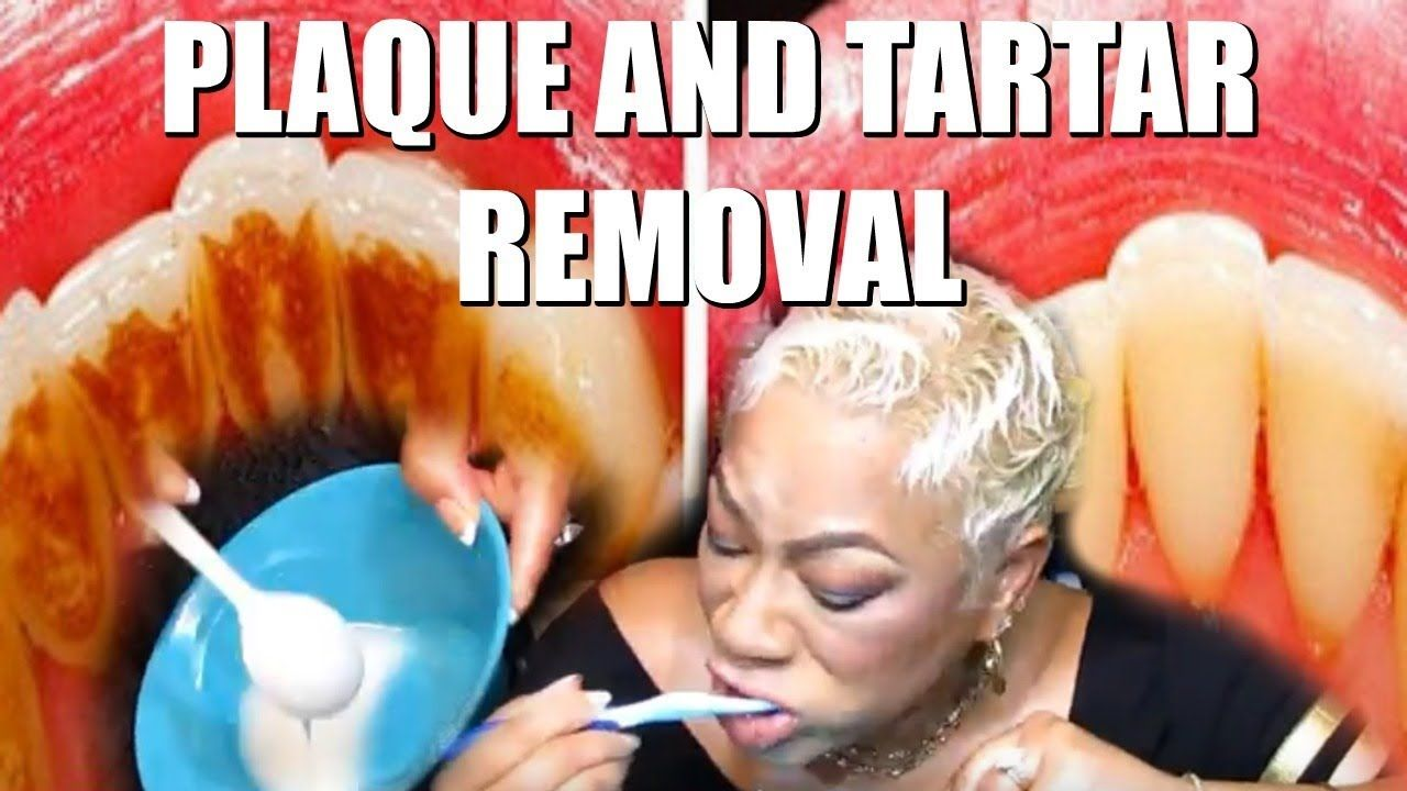 How to remove dental plaque and tartar from teeth without