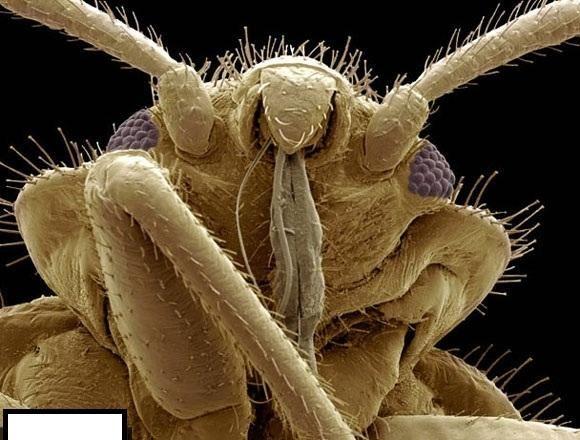 الحشرات كما لم تشاهدونها من قبل صور مدهشة لحشرات م كبرة مليون مرة صـــور Scanning Electron Microscope Insect Photos Pictures Of Insects