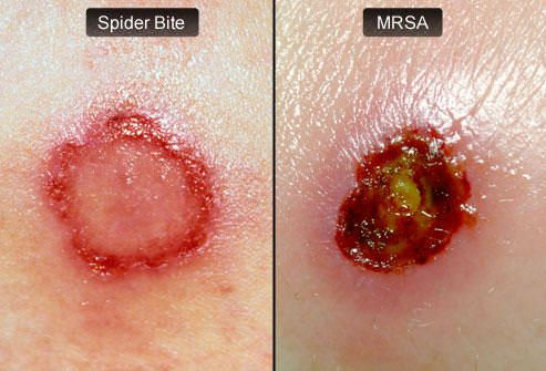 what is mrsa staph infection symptoms and treatment disease