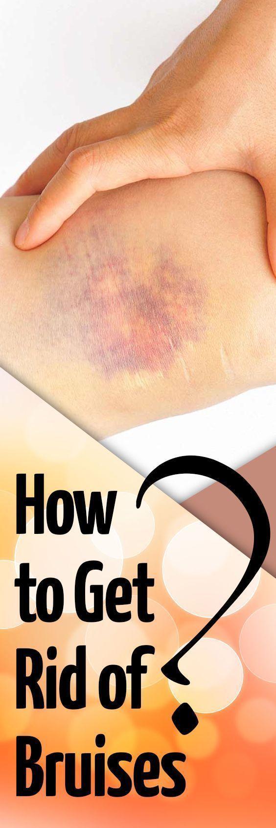 7693a28e56d98959c85ef8465057b6b9 - How To Get Rid Of Bruises On Face Overnight
