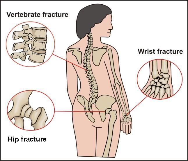 33+ How does osteoporosis affect the body as a whole viral