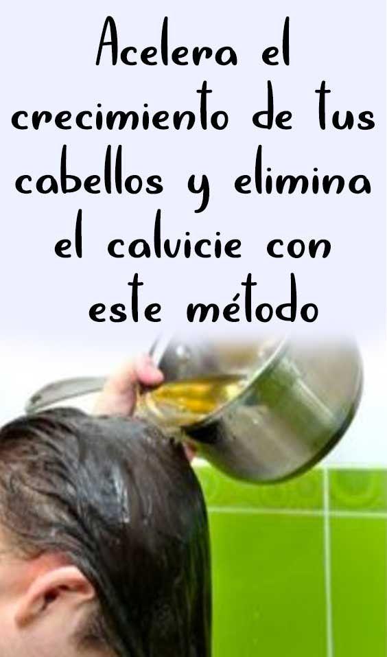 Acelera El Crecimiento De Tus Cabellos Y Elimina El Calvicie Con Este Método Grow Hair Hair Beauty Hair Care