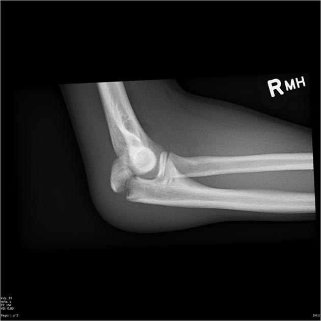 X Ray Broken Elbow Olecranon fracture Fal...