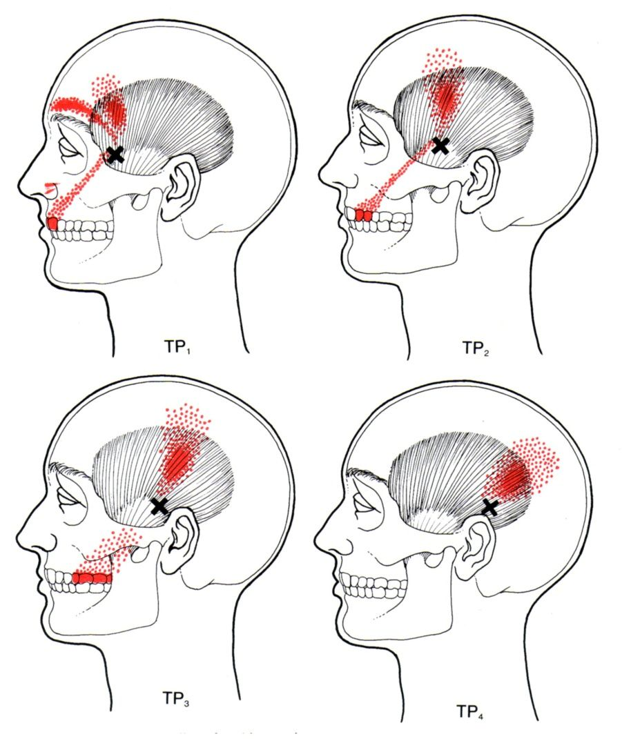 Temporalis | The Trigger Point & Referred Pain Guide | massage ...