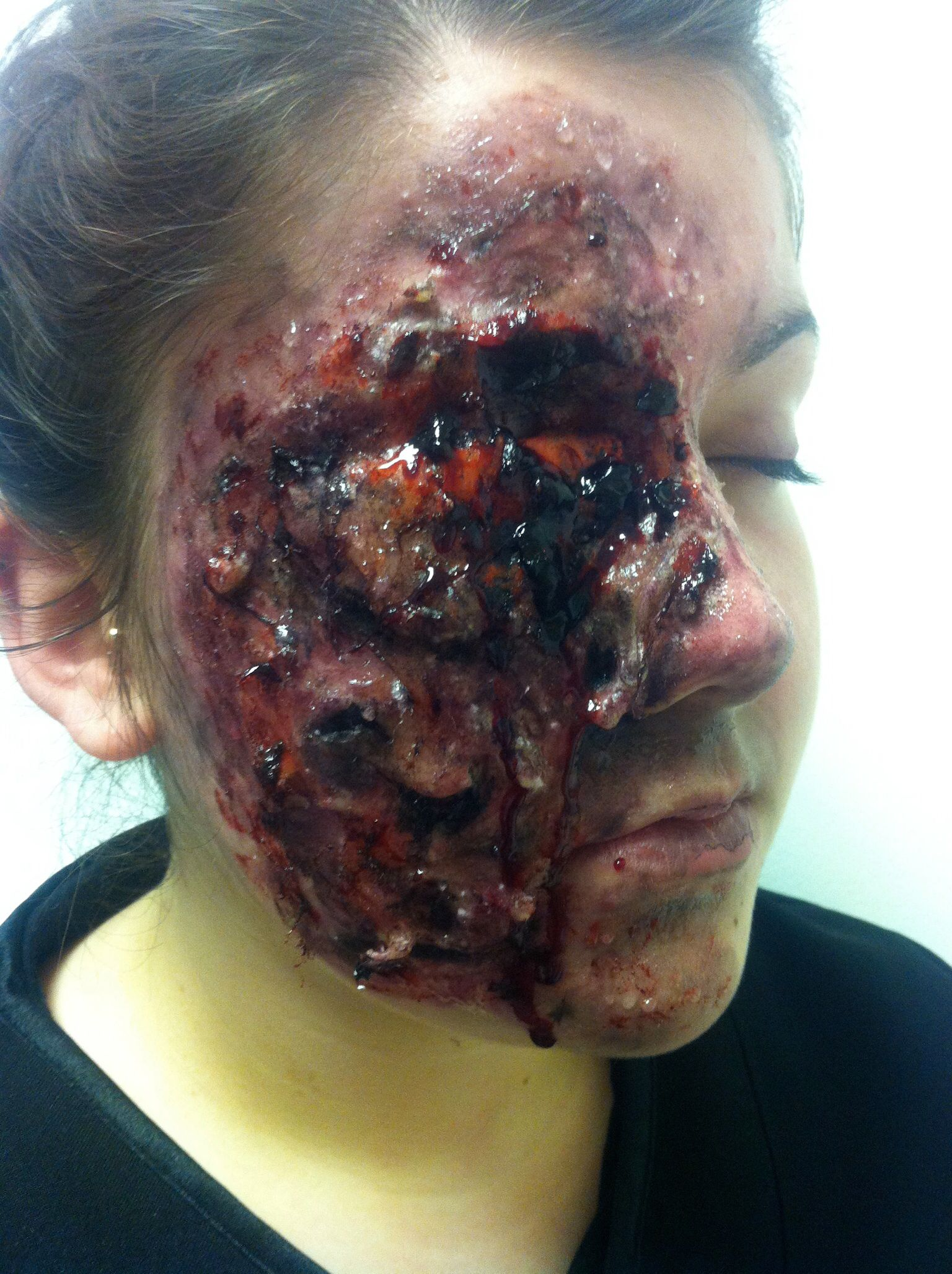 Fatal Third Degree Fire Burns | Theatrical makeup, Media ...