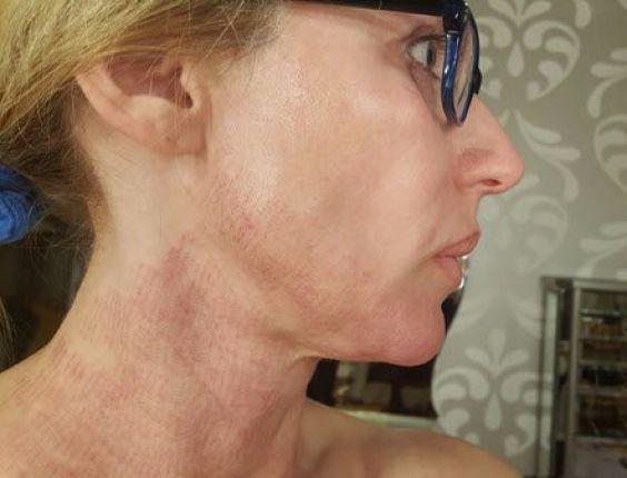 Day 2 After Infini | Laser Skin Rejuvenation | Laser skin