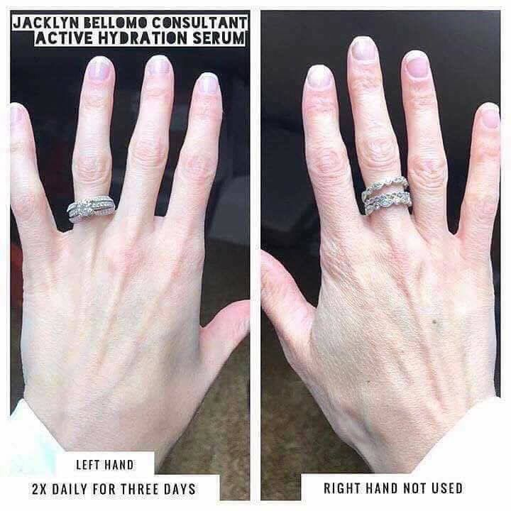 If Active Hydration Serum can do this for your hands