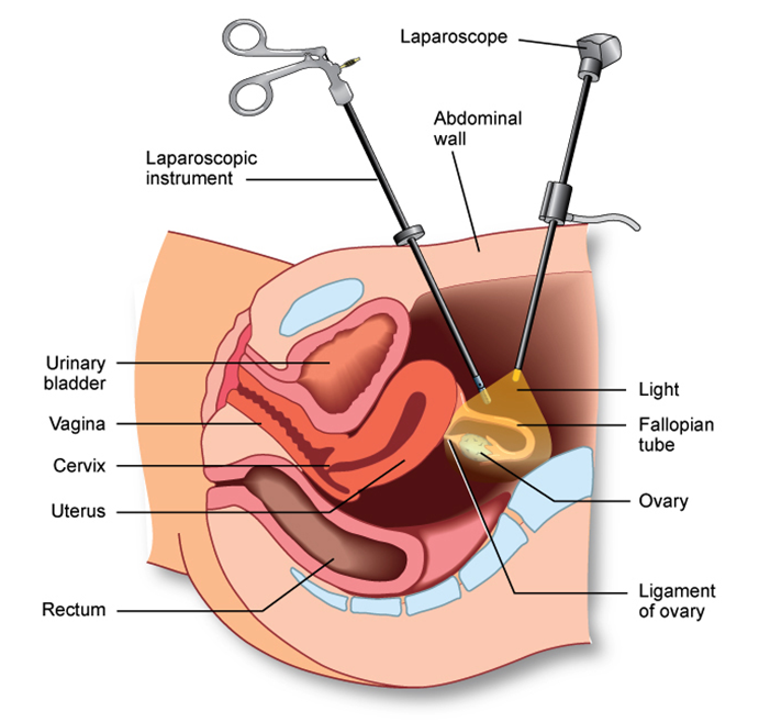 Get Free Consultation From Best Surgeons for Laparoscopic ...