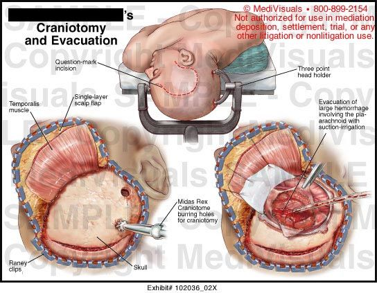 Craniotomy Vs Craniectomy