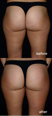 Pin On The Truth About Cellulite By Joey Atlas