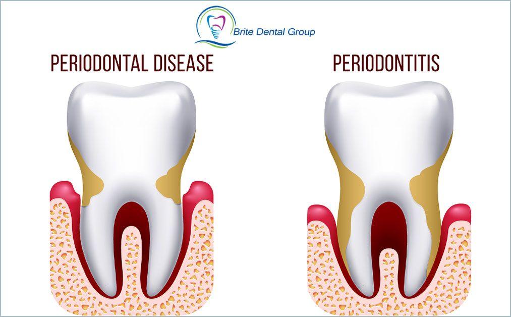 Brite dental group in 2020 dental benefits implant