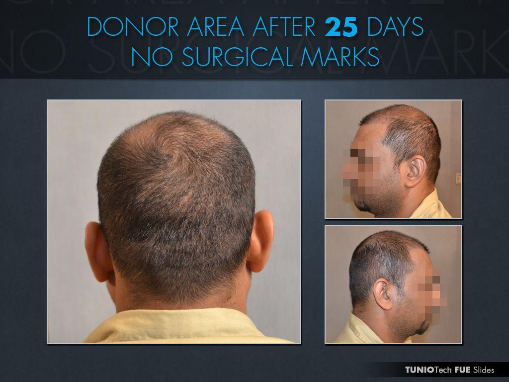 Fue Hairtransplant Fuedonorarea Drzulfiqartunio After 25 Days Hair Transplant Best Hair Transplant Fue Hair Transplant