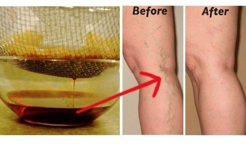 garlic for varicose veins