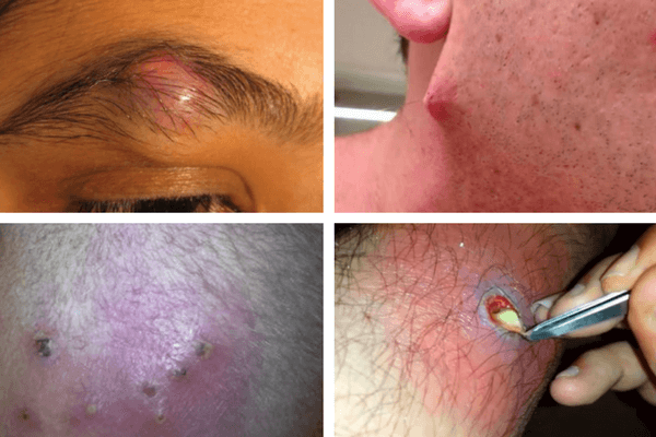 Ways to prevent and treat sebaceous cysts - Viva