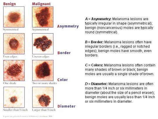 Skin Cancer #skincancer #cancer #cancertreatment