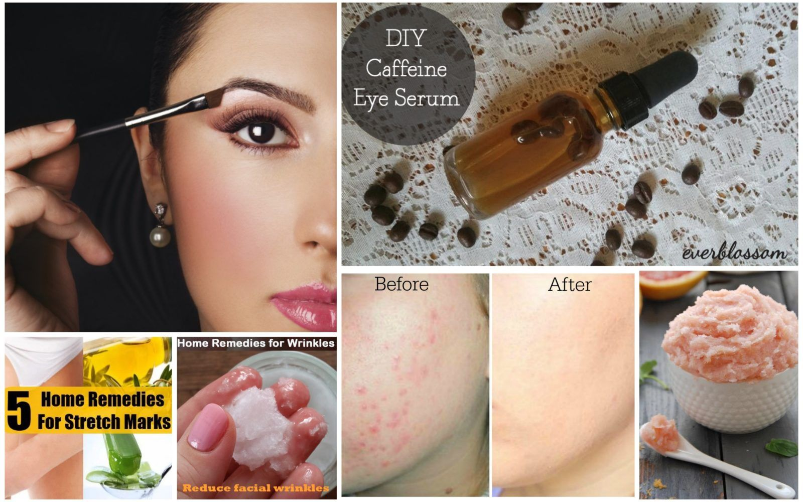 How to get rid of acne and dark marks beauty hacks skin