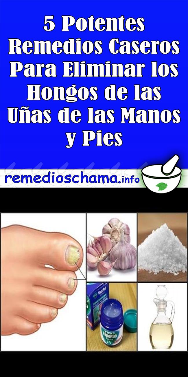 remedios hongos uñas manos