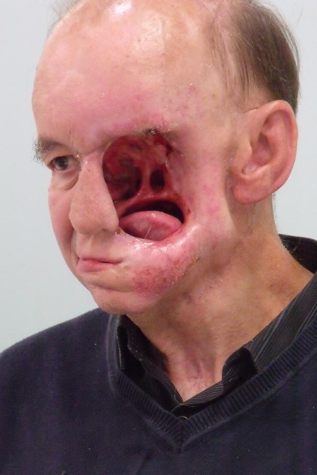 Horror | Makeup morgue | Face, Medical photos, Medical facts