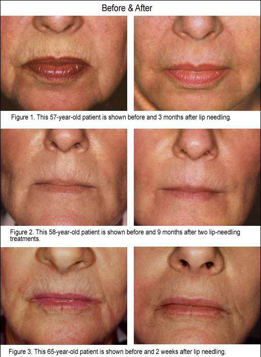 Lip Wrinkles Red Light Therapy For Facial Aging