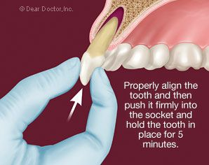 An Avulsed Tooth Is A Term Used By Dentists To Describe A Tooth