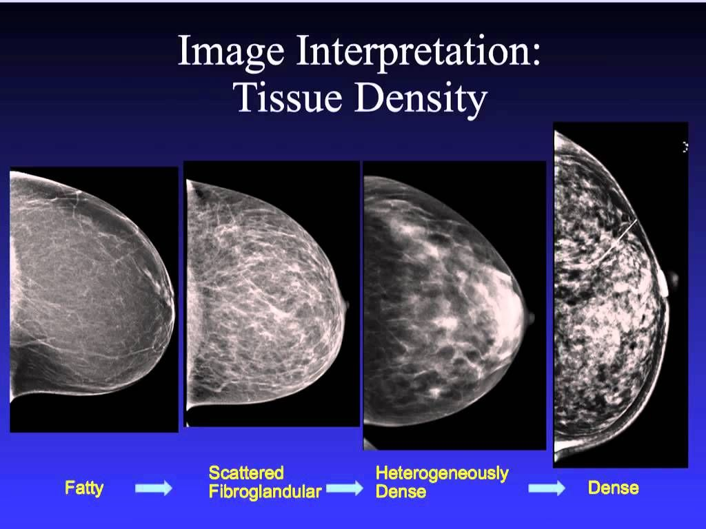 Introduction to Mammography Mammography, Mammogram