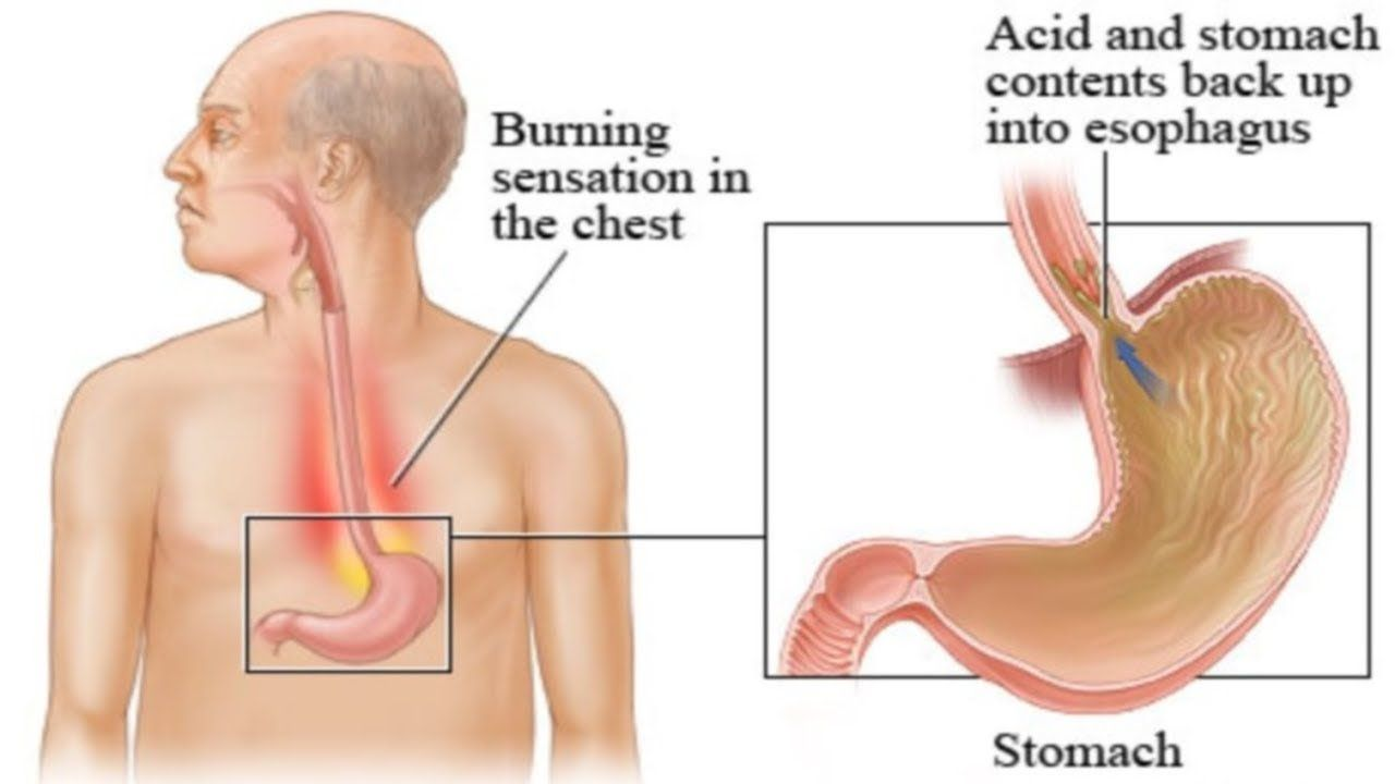 [Video] Generally speaking, the symptoms of acid reflux are quite numerous.