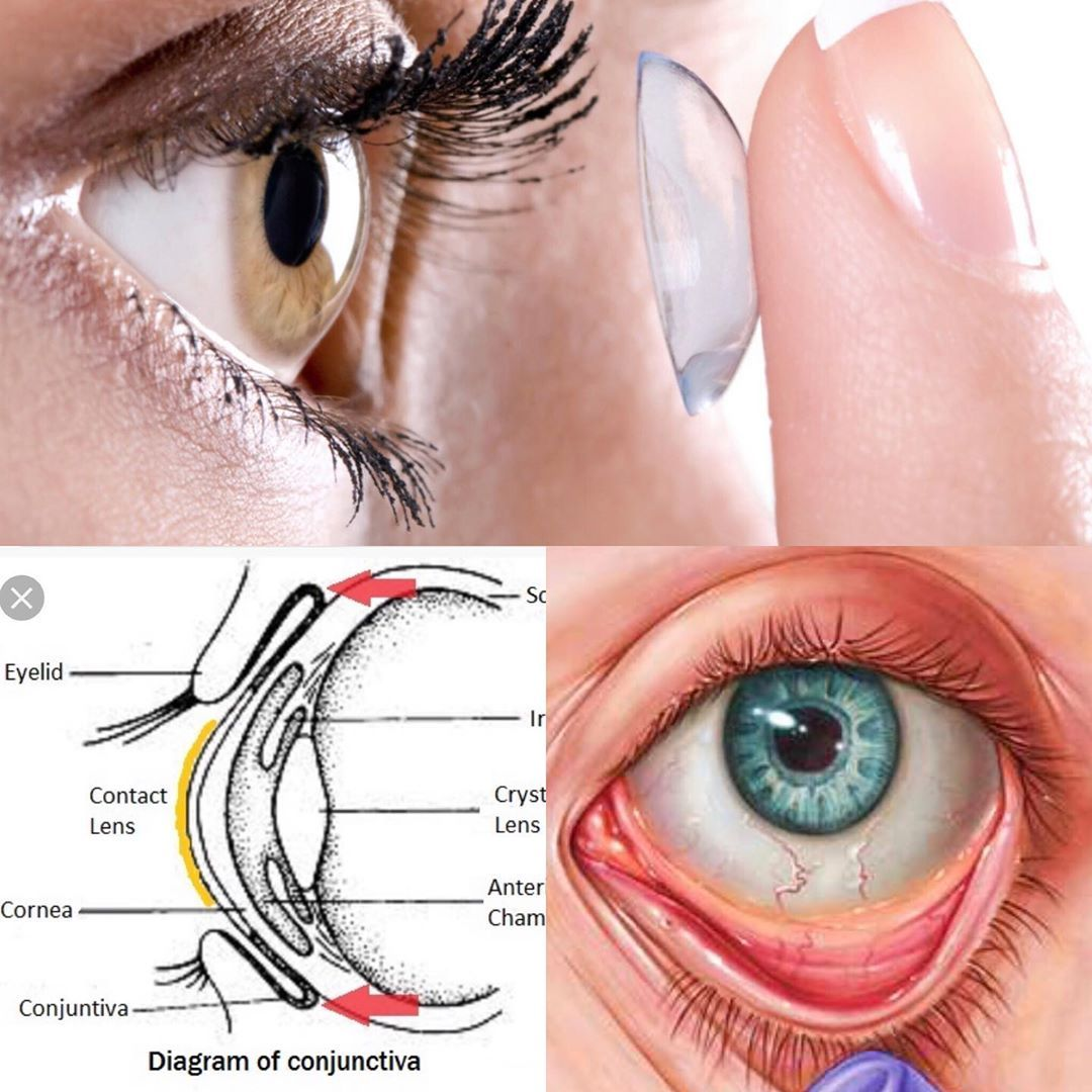 How To Get Contact Out From Behind Your Eye