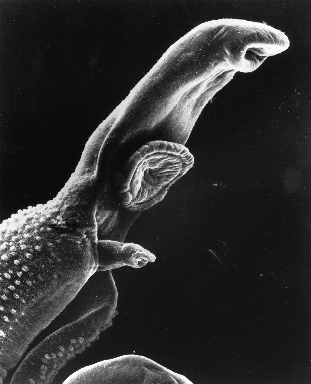 wnyc radiolab paraziták