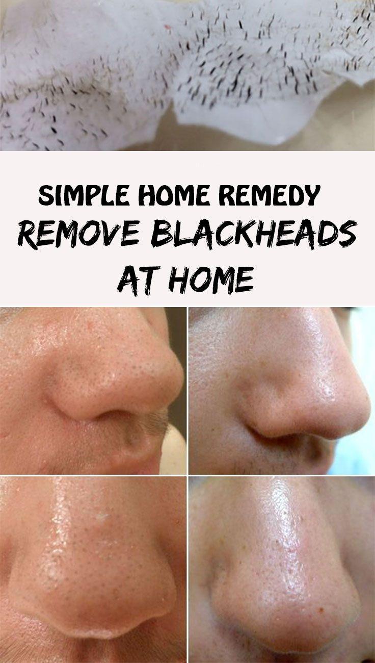 Pin on Removing blackheads