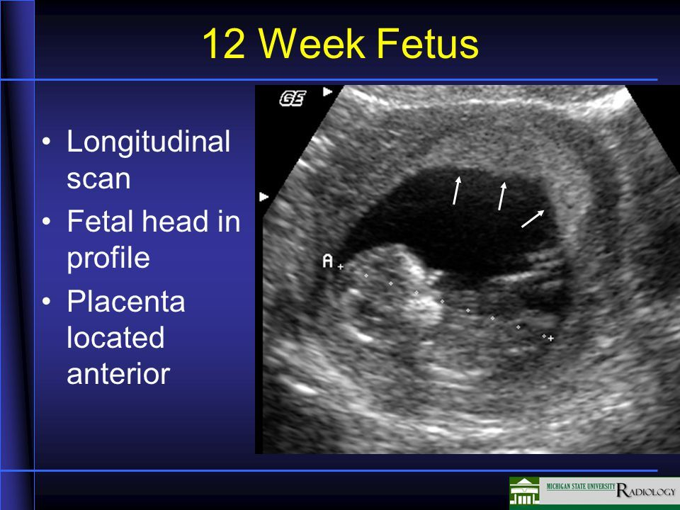 Labeled Fetal Ultrasound Images Google Search Sonography