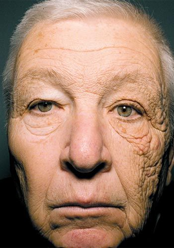 *BELIEVE IT OR NOT ~ The result of driving a truck for 28 years exposing only half of your face to direct sunlight.