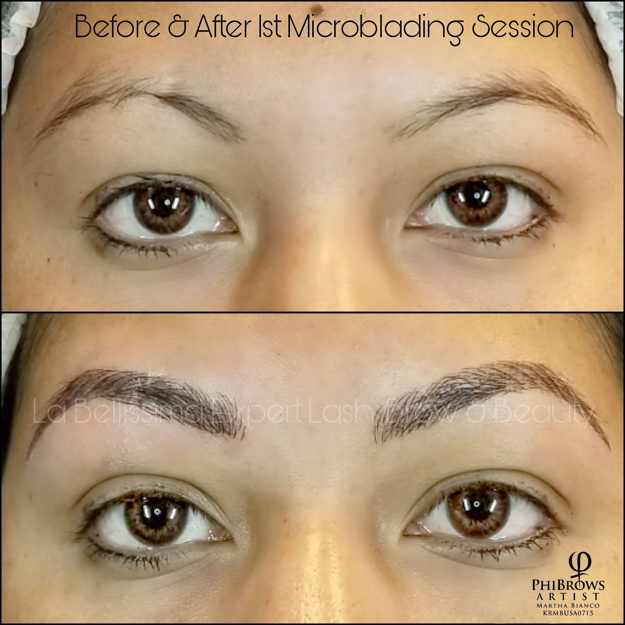I See Many Clients Who Have A Scar Or Other Injury On Their Brow