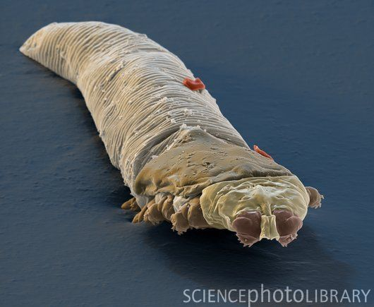 This lovely creature is Demodex folliculorum, better known as the ...