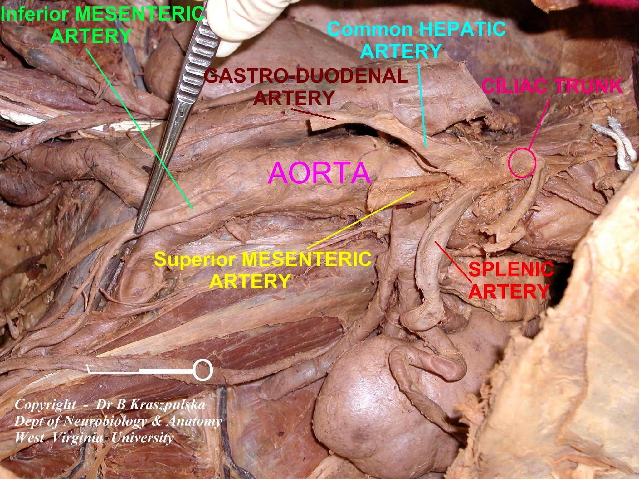Inferior Mesenteric Artery Cadaver Google Search Final Tag Exam