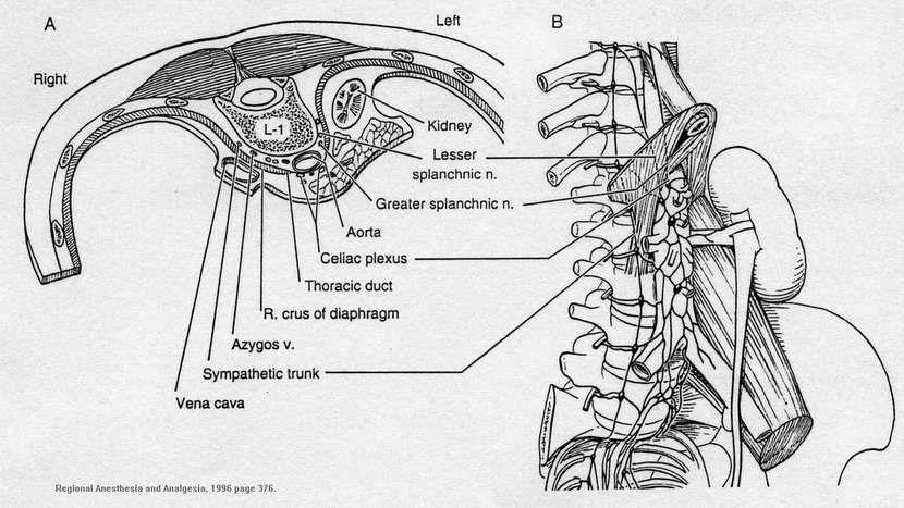Celiac Plexus Block Procedure Being A Doc Pinterest Celiac Plexus