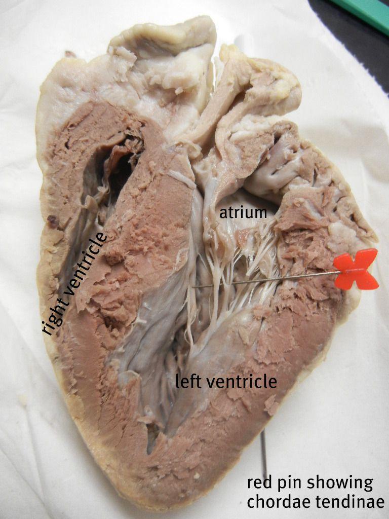 Sheep Heart Dissection | | A&P | Pinterest | Med school