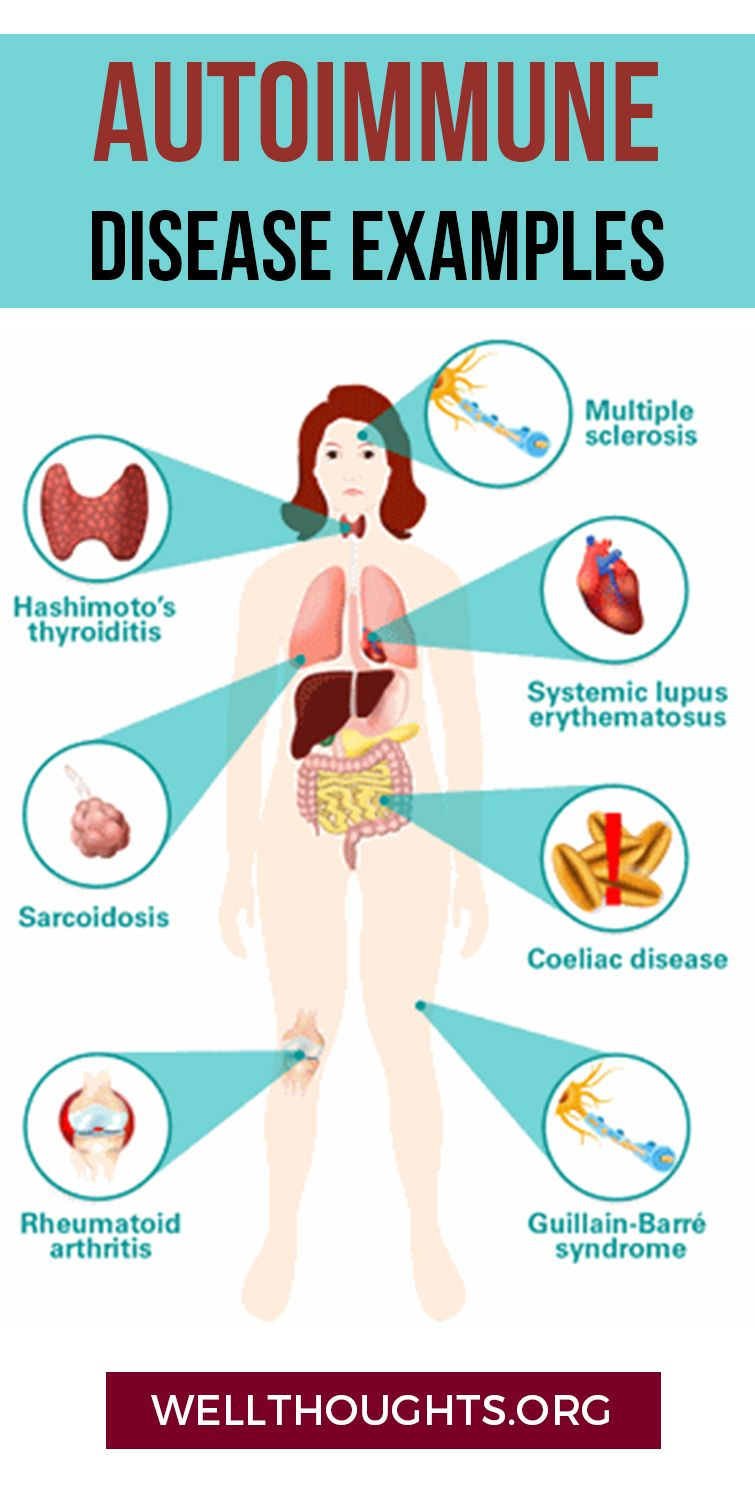 Leaky gut, also known as increased intestinal permeability