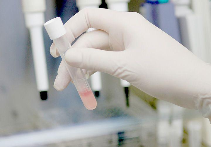 ¿Detectar cáncer de mama con saliva? | Revista Moi