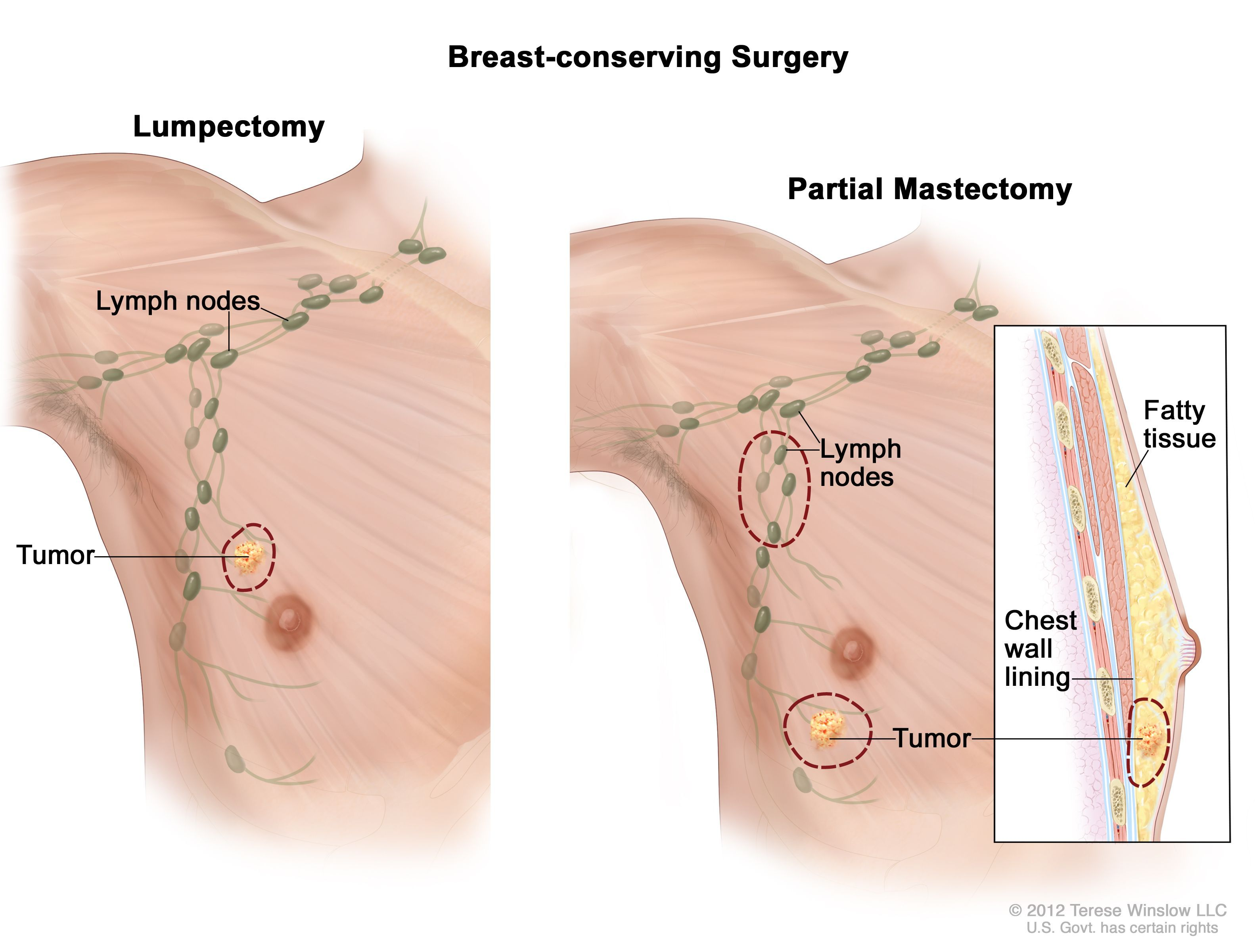 Learn more about Male Breast Cancer Treatment (PDQ®) (Patients) from the National  Cancer Institute at Siteman Cancer Center. #breastcancersymptomslymphnodes