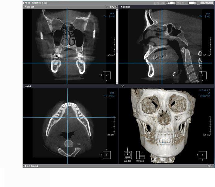 19+ Facial Contouring Surgery Korea 3D Cheekbone, Face Sculpting