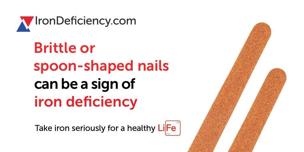 irondeficiency #anemia #anaemia #irondeficiencyanaemia ...