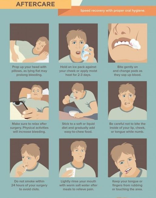 Now That It S Summer Break For Many Kids It S The Best Time To Get Wisdom Teeth Extracted We Wisdom Teeth Removal Recovery Wisdom Teeth Recovery Wisdom Teeth