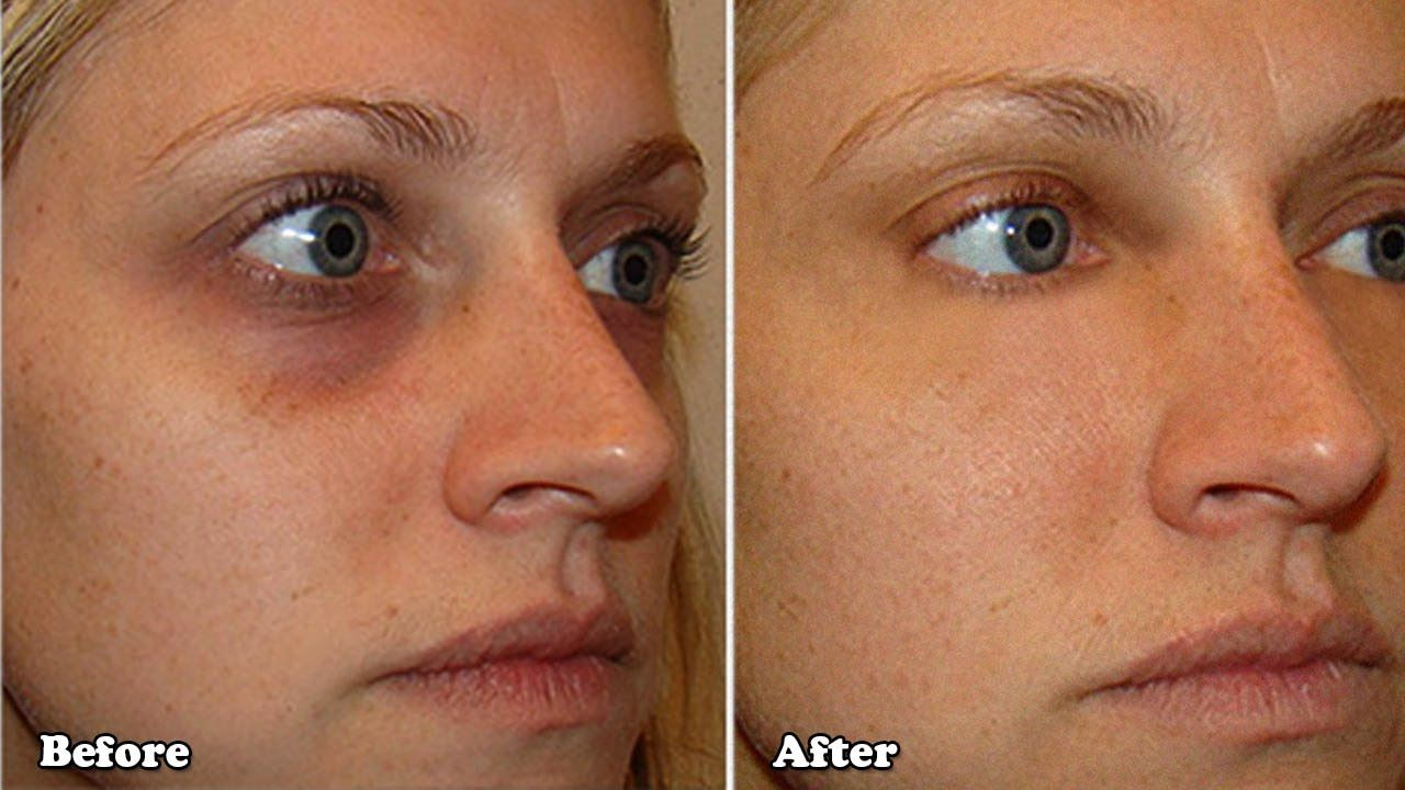 how to make dark circles under eyes go away naturally