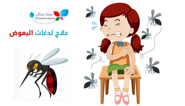 علاج لدغات البعوض طرق طبيعية لعلاج لدغة الناموسة و اثار الحكة و الحساسية Sehajmal Anime Art
