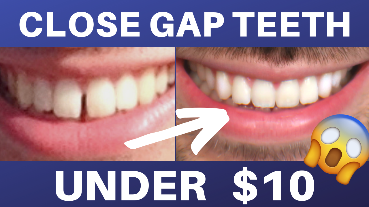 With this DIY tutorial video, you can close your own gap ...