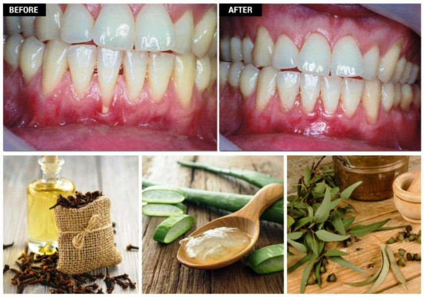 Reverse gum recession naturally