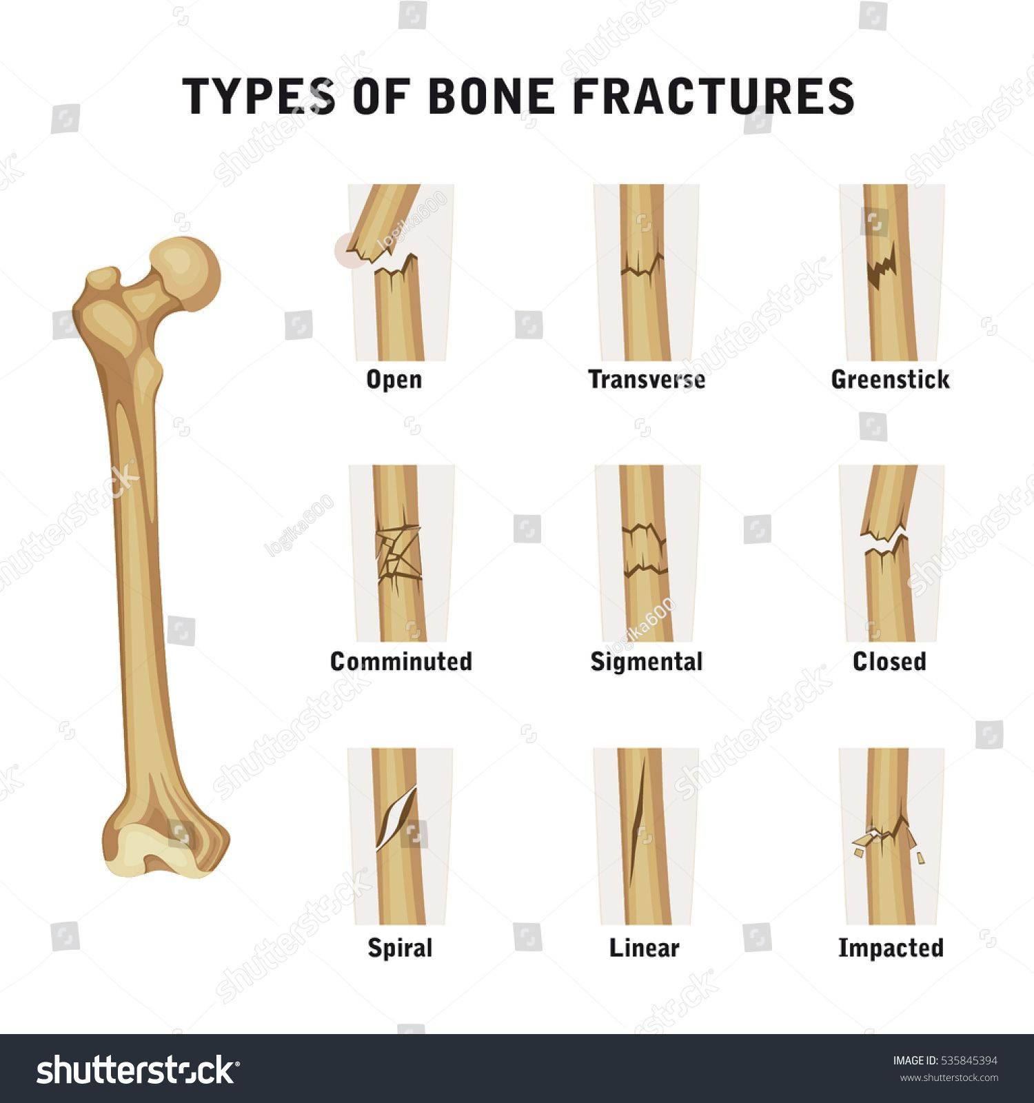 Types Of Bone Fractures Pictures With Images