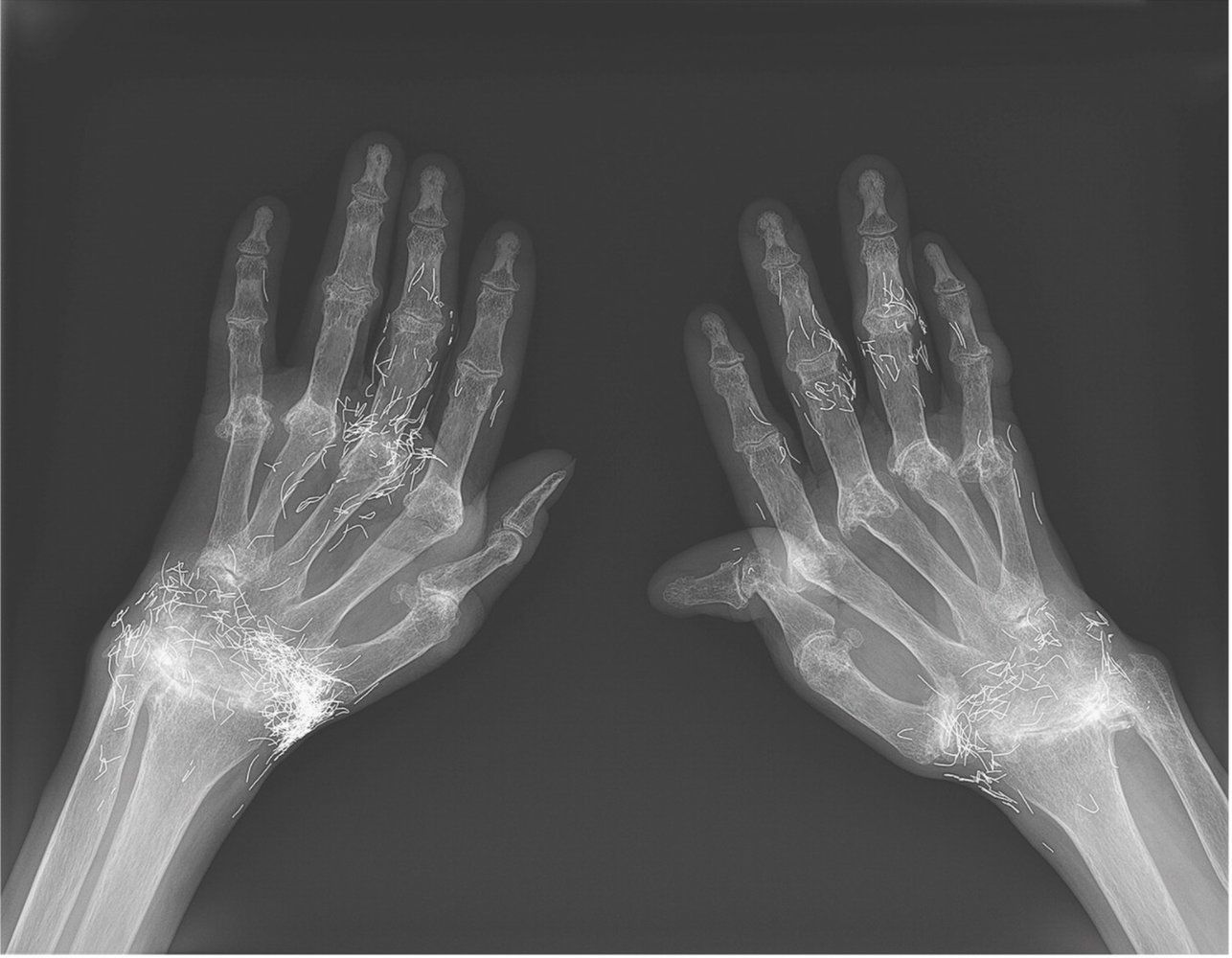 Why a Woman\'s Wrists Glowed with Gold Filaments on an X-Ray | Pinterest